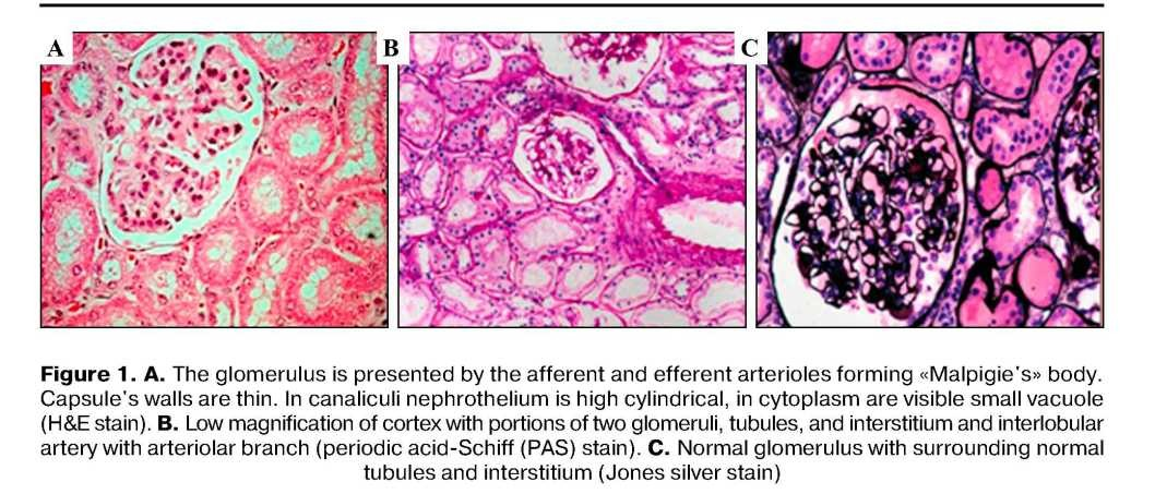Diagnostics of renal allograft dysfunction: our experience in application of banff-07 classification