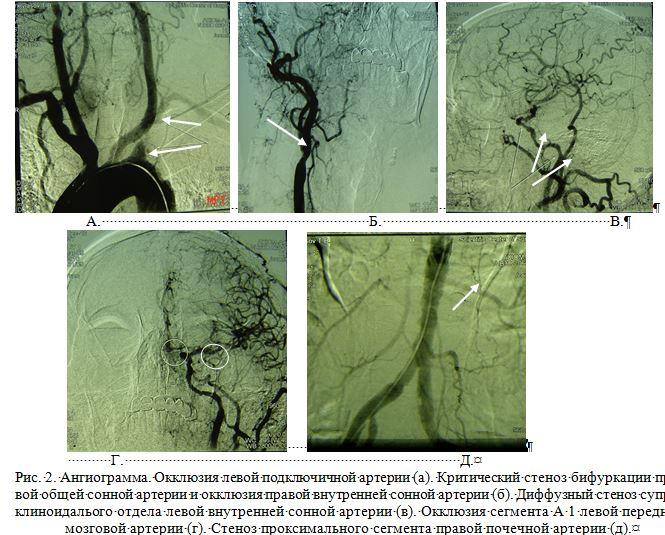 Окклюзия подключичной артерии фото