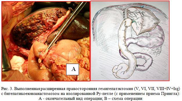 Схема гемигепатэктомия